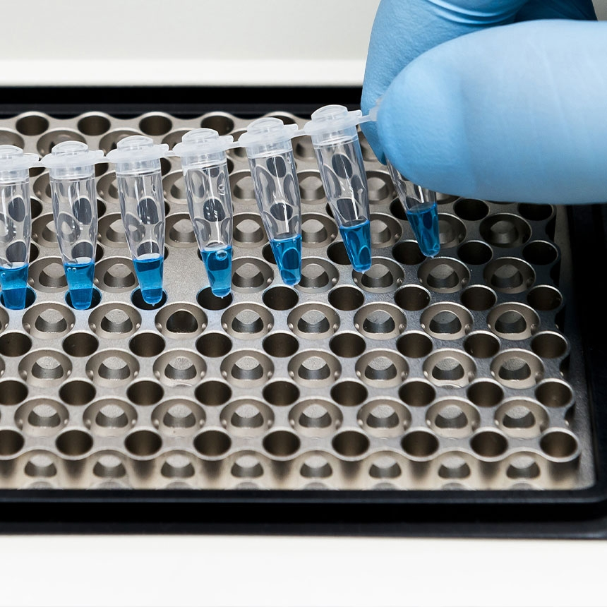 QF-PCR i analiza alleli